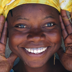African with a beautiful smile and a very marked overbyte. Source of image: http://www.africanlens.com/topics/faces